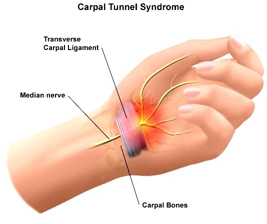 carpal tunnel syndrome - norris health, Human Body