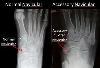 accessory-nav-physio-pedia