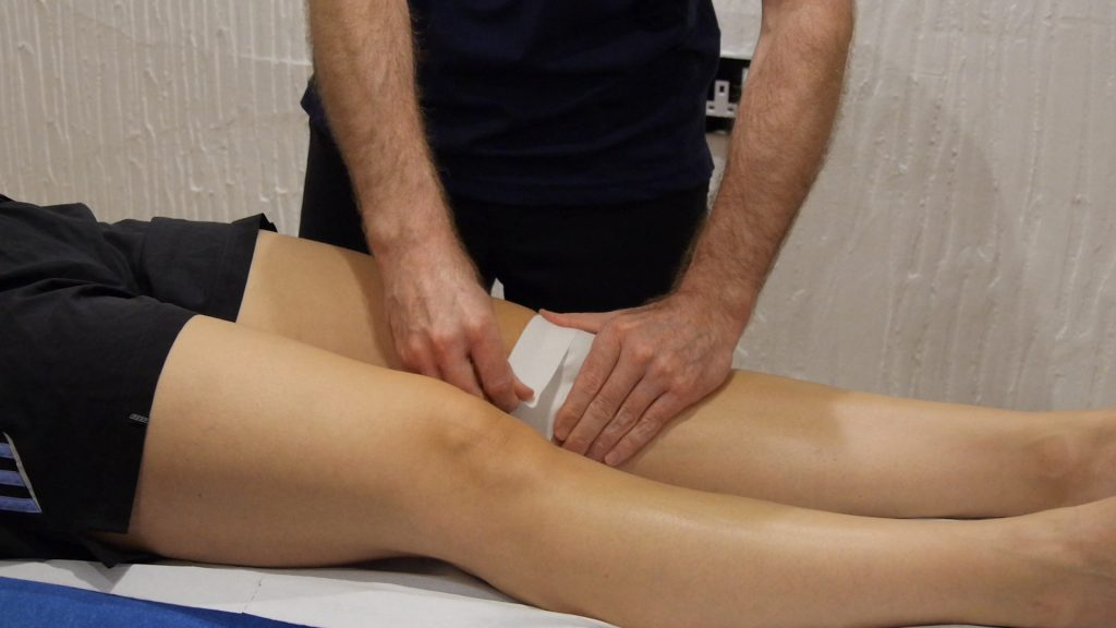 Medial glide patella taping