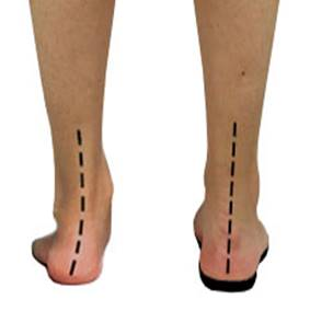 Excessive pronation (left) corrected with an orthotic (right)