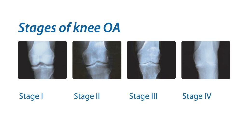 stages of knee