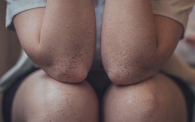 Kneecap pain