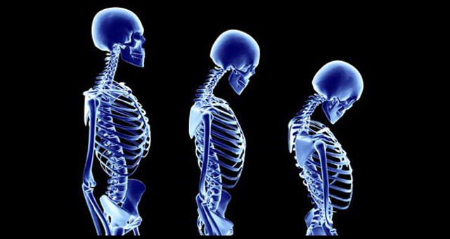 Posture is not important – until it is