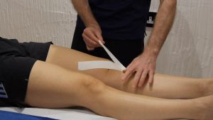 taping the patella fat pads