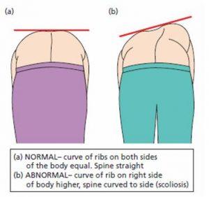 Adams position - scoliosis